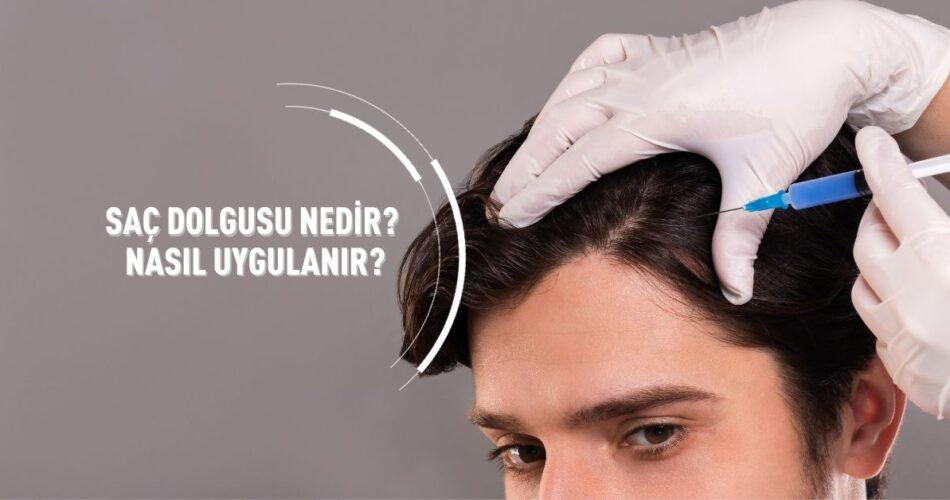 Saç Dolgusu Nedir Nasıl Uygulanır